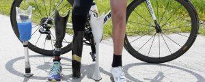 3dp_sportsprosthetic_schindler_legs